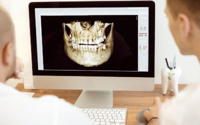 3D Printing in Oral Surgery